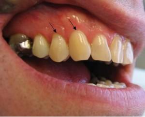 Dental Restoration Case 1