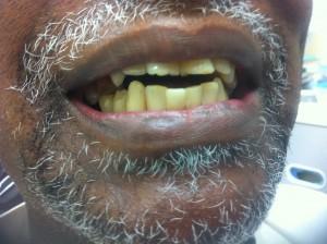 Dental Restoration Case 4
